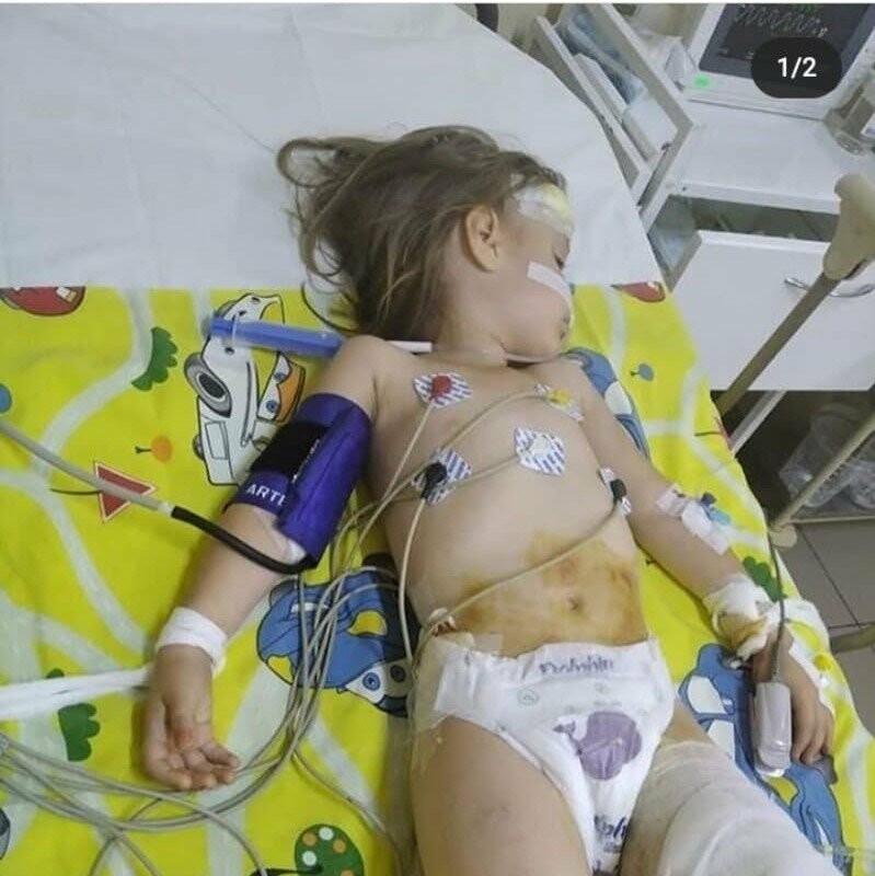 Дівчинка, яку переїхав автомобіль в Дрогобичі, потребує дорогого лікування, фото-1