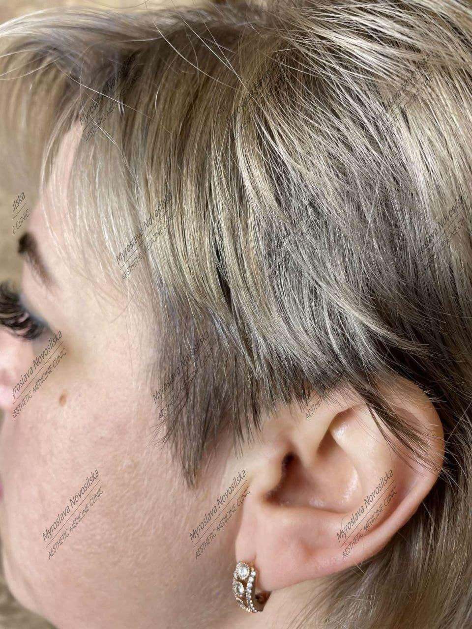 Відновити волосся після хіміотерапії реально , фото-2
